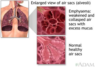 Enlarged view of air sacs (alveoli) - Emphysema: weakened and collapsed air sacs with excess mucus vs. normal healthy air sacs