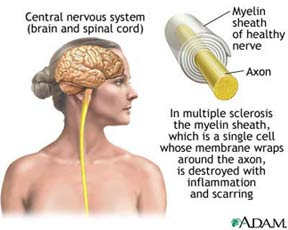 In multiple sclerosis the myelin sheath, which is a single cell whose membrane wraps around the axon, is destroyed with inflammation and scarring